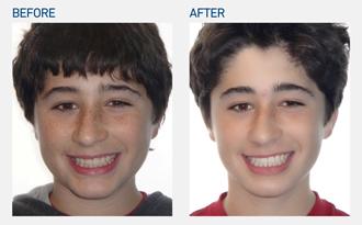 Marin orthodontics - Invisalign Teen AcceleDent case