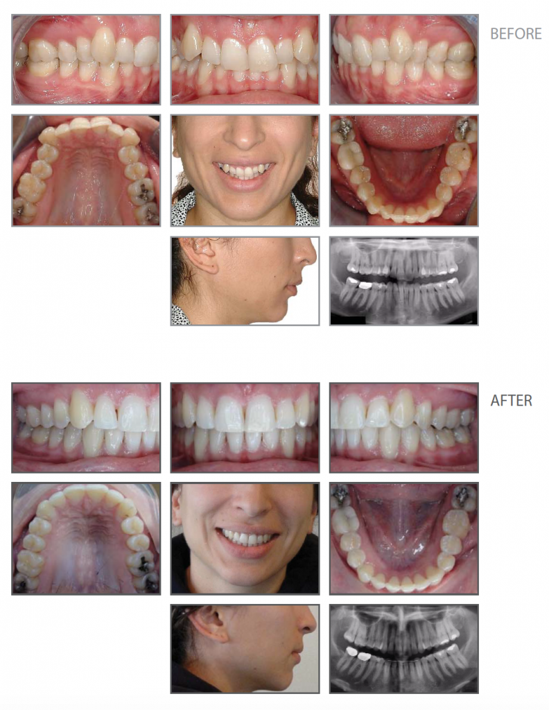 G&SO 2016 Adult Invisalign Case Study