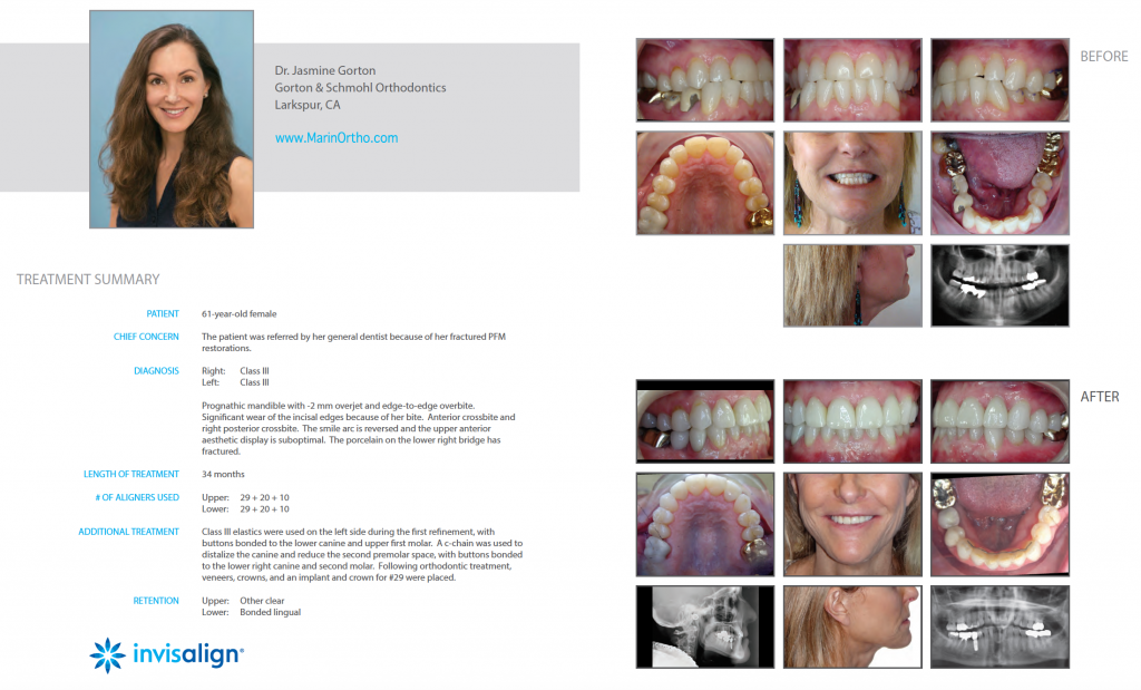 Invisalign for Adults Case Study