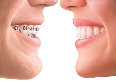 Cost of Invisalign v Braces