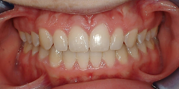 Open Bite after full braces done