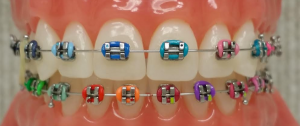 Braces with Colors