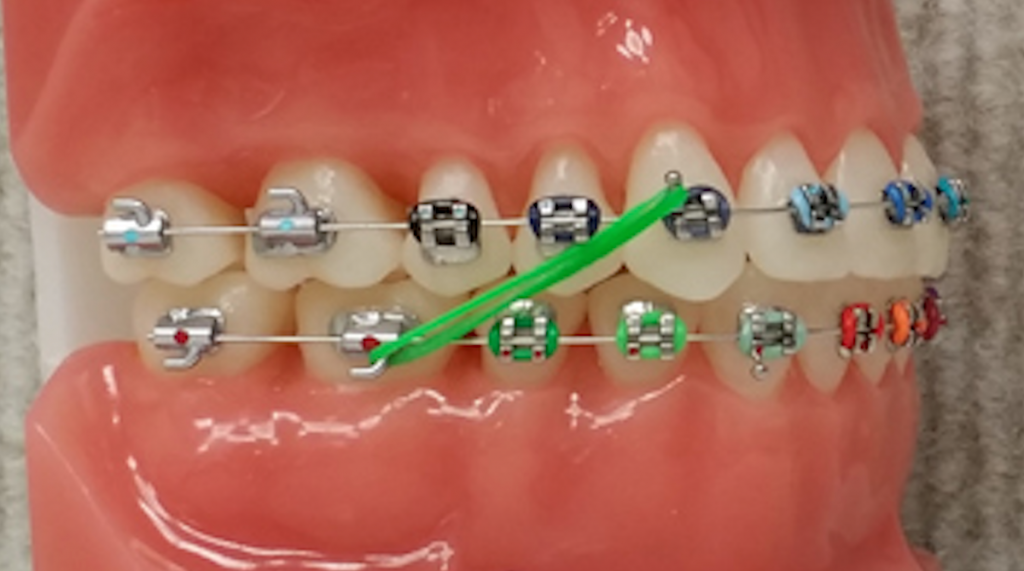 Colored Elastics - Marin Ortho