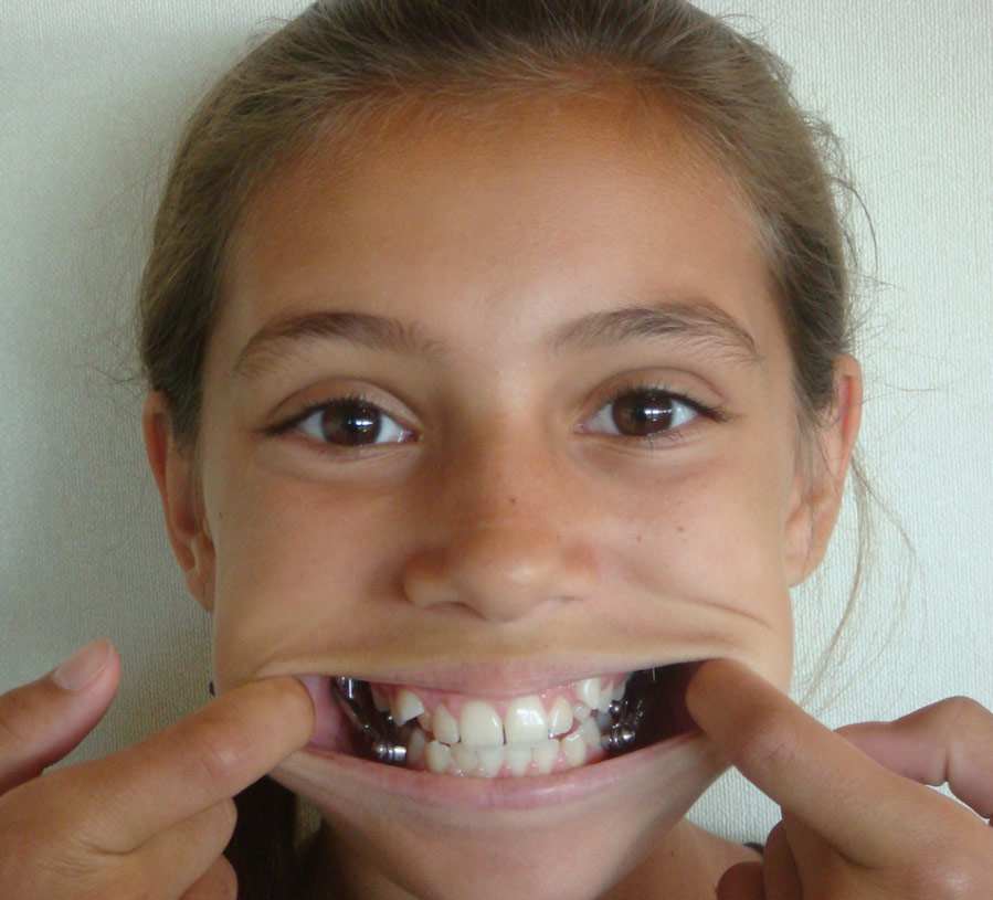 Herbst - Orthodontists Maric CA