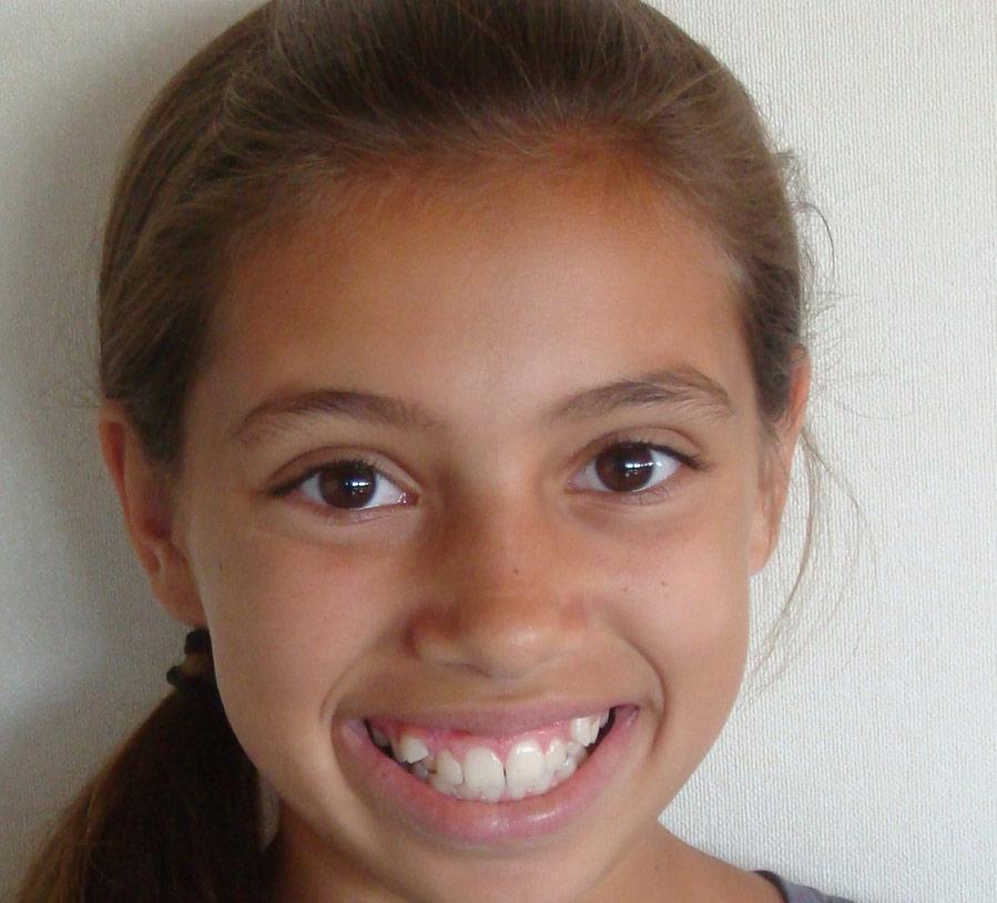 Herbst - Orthodontists Maric CA