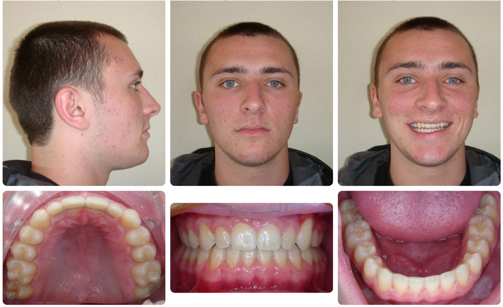 Invisalign Patient Invisalign Teen Is 121