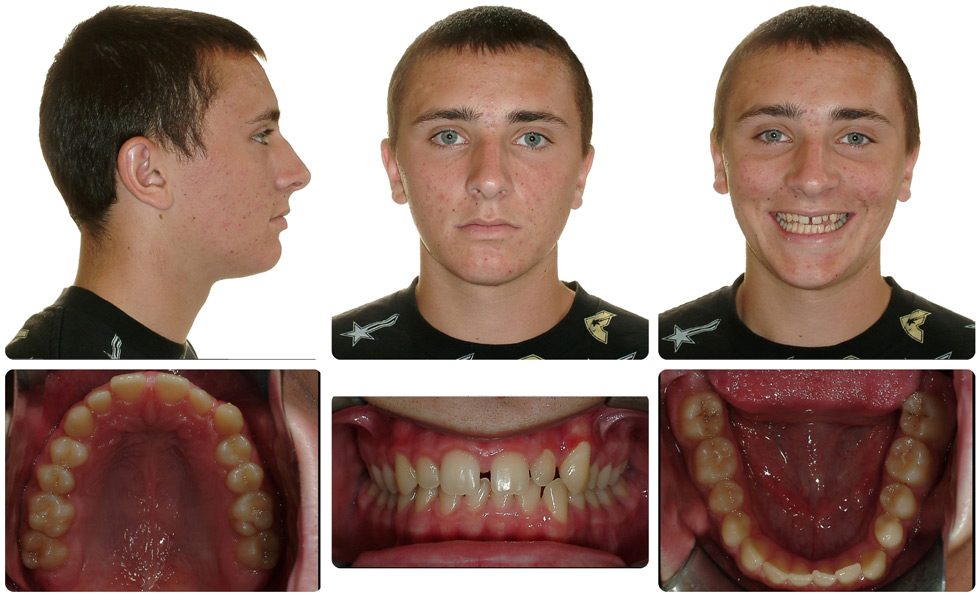 Invisalign Patient Invisalign Teen Is 30