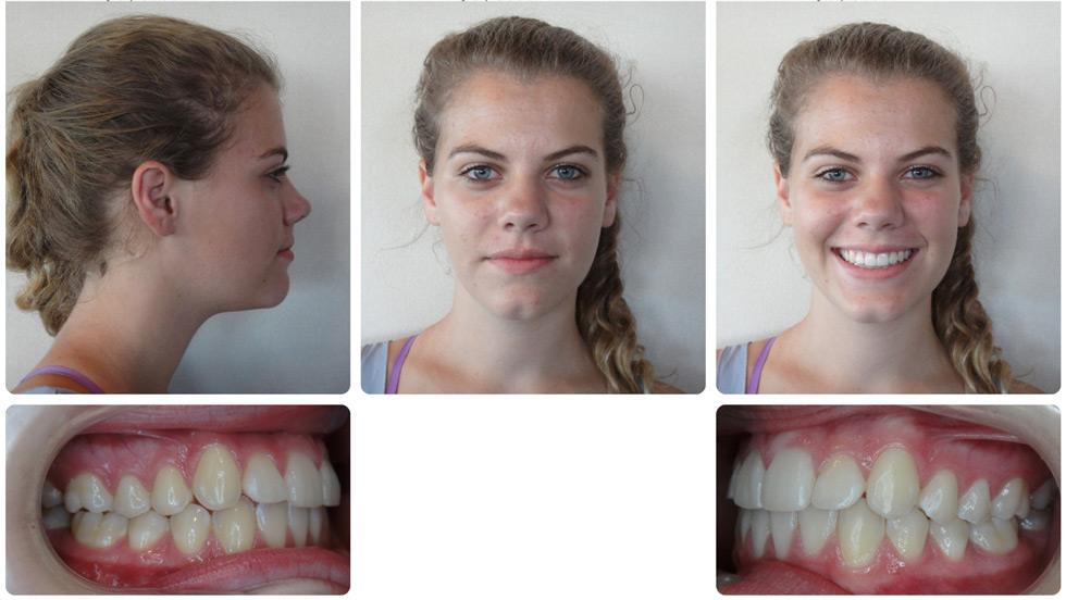 Invisalign Patient Invisalign Teen Is 84