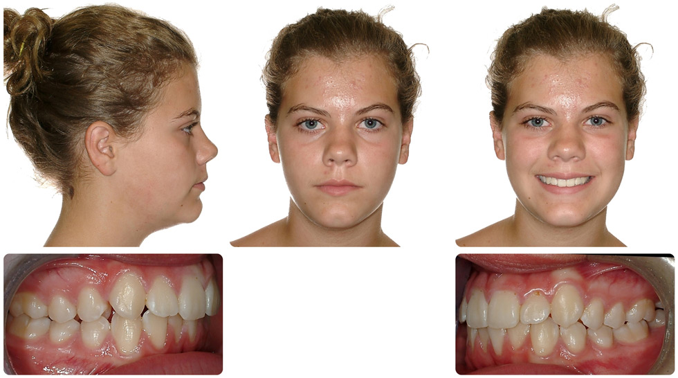 Invisalign Patient Invisalign Teen Is 104