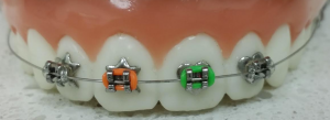 How do Wildsmile Braces Work