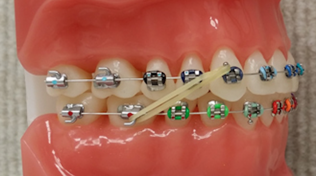Elastics Gorton Schmohl Orthodontics Braces Colors