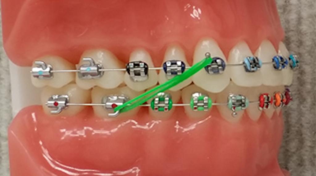 Elastics Gorton Amp Schmohl Orthodontics Braces Colors