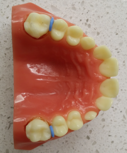 Separators - Marin Ortho