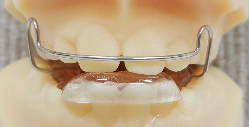 Bionator - Orthodontist in Marin