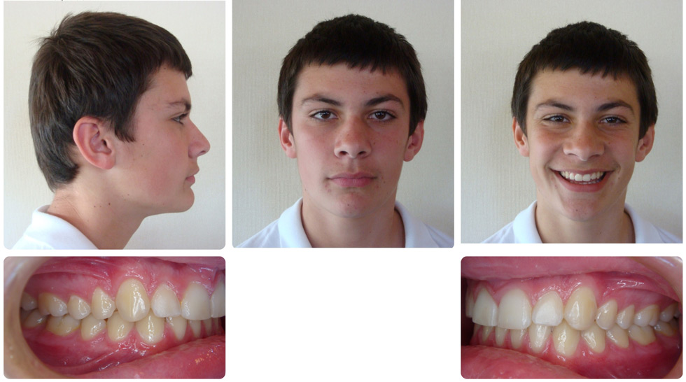 invisalign patient after treatment