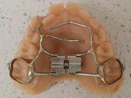 thumb guards from Marin Orthodontists