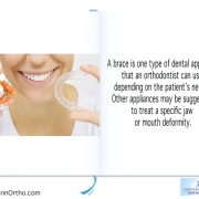 Three Reasons Your Orthodontic Braces Are Still On 6