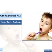 "Tooth Brushing Mistake No.7: ""Skipping Inner Tooth Surfaces"" 4"