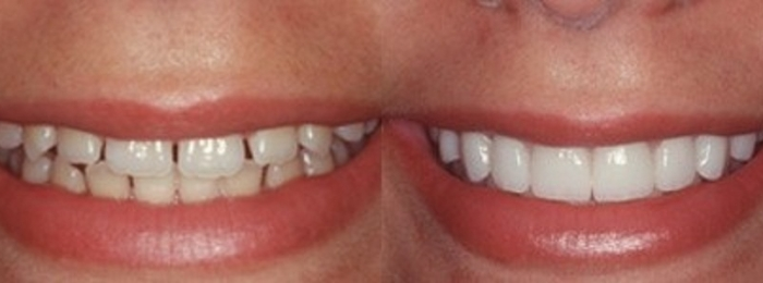 What Happens? (After Invisalign Treatment is Completed)