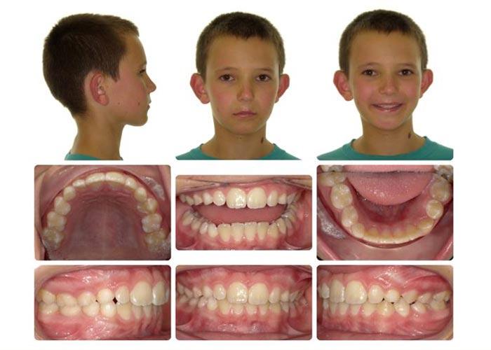 child before invisalign treatment
