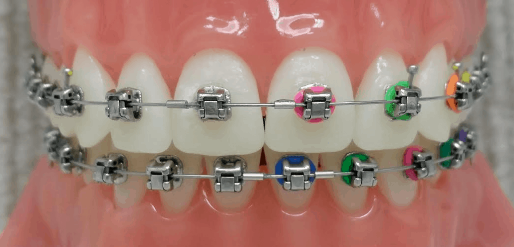 Damon Braces - Marin Ortho