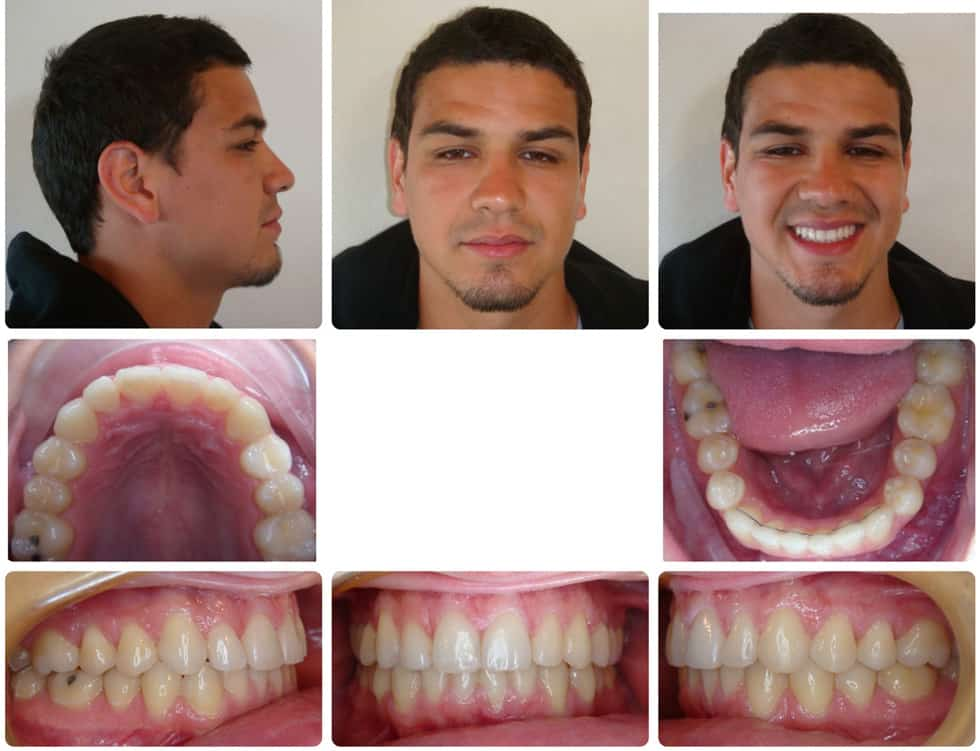 invisalign adult patient after treatment