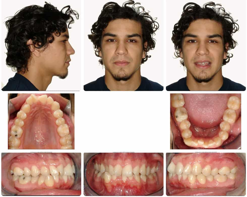 invisalign adult patient before treatment