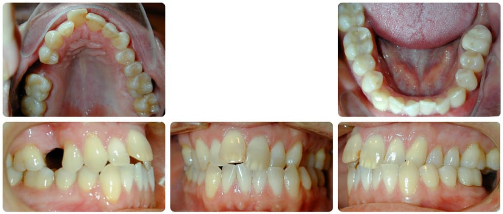 invisalign patient before treatment