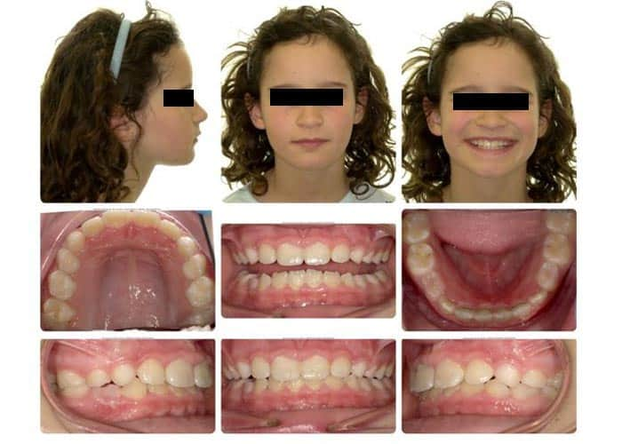 child after invisalign treatment
