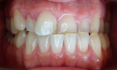 reshaping teeth