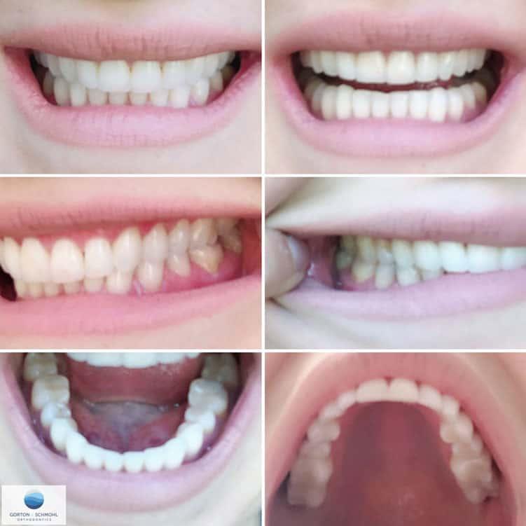 Orthodontics Virtual Consultation Example Photos