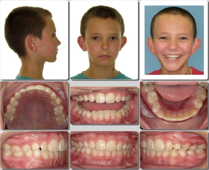 Invisalign for kids 1