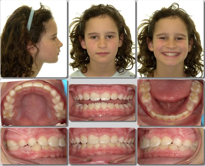 marin orthodontist patient