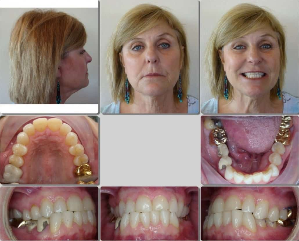 G&S Invisalign Adult page