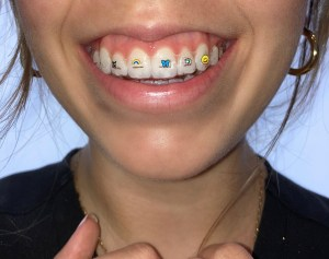 NEW! Invisalign Stickables 5
